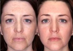 Home Remedies for Melasma Treatment and Cure