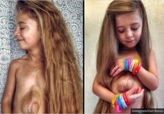 Meet The Six-Year-Old Girl Born With Her Heart Outside Her Chest