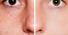 Get Rid of the Pores on Your Face, Naturally - Ethnic Health Court