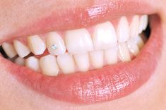 tiny diamond in tooth - interesting! I would never do it though.