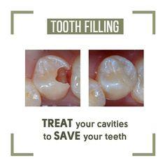 - Credit Tips Dental Facts, Dental Humor, Green Teeth, Holistic Dentist, Oral Health, Cavities, Teeth Whitening, Dentistry