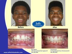 Orthodontics, Portsmouth, King Charles, Photos, Pictures, Cake Smash Pictures