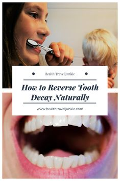 How to reverse tooth decay and cavities naturally. #reversetoothdecay #healcavities #reversecavities