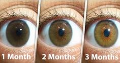 Natural Remedy for Cleaning Your Eyes and Improving Vision in Only 3 Months: Here is What You Need to Do to Avoid Surgery!