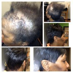 Black Hairstyles For Thin Edges Fascinating Braid Down For Crochet Install On A Guest With Alopecia