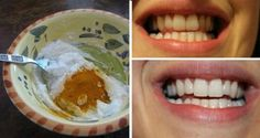 MAGIC FORMULA: Here's How To Whiten Your Teeth In Less Than 5 Minutes! (VIDEO) | Keep Your Body