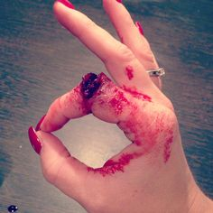 Grazed knuckle SFX I love these from Katie Wrigley so painfully amazing. xxx
