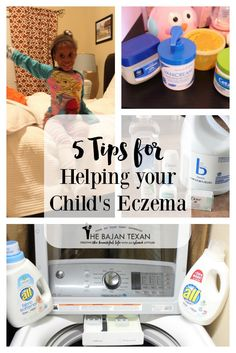 5 Tips for dealing with your child's eczema. How to help eczema in kids. #ad #FreeToBe