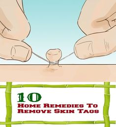 Home Remedies To Remove Skin Tags #HomeRemediesToRemoveSkinTags