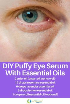 Struggling with puffy eyes? Try this DIY puffy eye serum made with essential oils! You'll be surprised what a few drops of essential oil can do for your eyes!