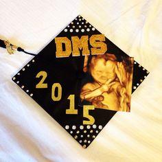Today's the day!!  #wedidit #graduation #graduationcap #graduationcapdecoration #decoration #dms #ultrasound #ultrasoundschool #dmsschool #classof2015 #sonographer