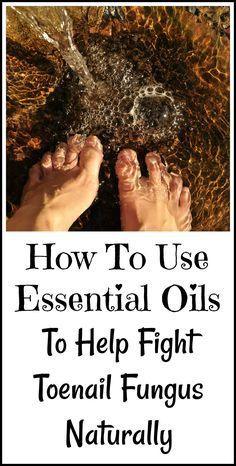 Essential oils to fight toenail fungus naturally, without drugs.