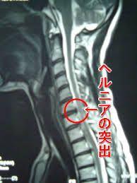 頚椎 ヘルニア