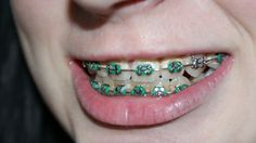 5 Things to Know About comfort denal braces. We offer all types of dental braces for teeth like transparent braces, ceramic braces, metal braces and more for greater comfort and high quality results. Know More Today! Dental Braces, Teeth Braces, Dental Implants, Dental Care, Smile Dental, Dental Group, Dental Hygienist, Ceramic Braces, Types Of Braces