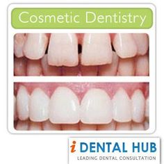 What is Cosmetic Gum Surgery