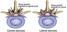 Spinal stenosis is one cause of back and neck pain. It affects your vertebrae (the bones of your back), narrowing the openings within those bones where the spinal cord and nerves pass through. #physicaltherapy #backpain