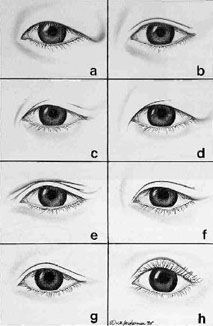 Types of Asian eyelids
