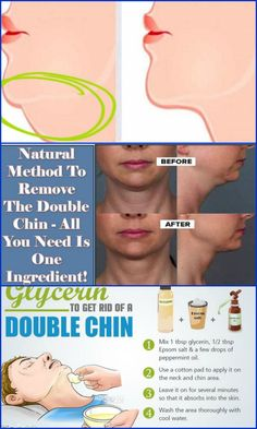 A double chin is subcutaneous fat deposition found under the lower jaw and around the neck which makes the tissues to sag down creating an appearance of having a second chin. Any person can develop…
