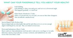 We don't pay attention to it, but our fingernail health is closely related to the rest of the rest of our body's. Taking note of your fingernail health can help you identify illnesses early and start prevention methods. Different marks, colors, and shapes on your nails can indicate changes in your health. This article will cover […]