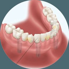 As the name suggests, partial dentures (also called partials or removable partial denture prosthesis) are designed for patients with a few missing teeth. http://goo.gl/PnDff9