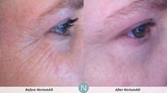 More Real Results from Nerium AD night Order here: sdskinfix.nerium.com - 30 day money back guarantee!