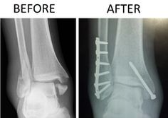 X-ray of trimalleolar fracture repair before and after ORIF surgery. (ankle)