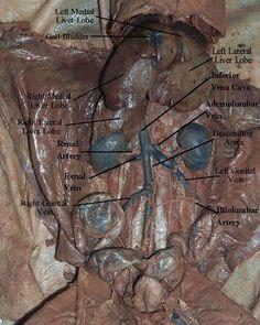 cat dissection | Schoolll | Cat anatomy, Arteries, veins ...