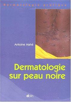 Télécharger Livre Dermatologie sur peau noire PDF Ebook Gratuit