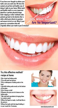 If you have ever thought to whiten your teeth, save you cash now. We have the easiest yet perfect and healthy way of doing it right at your home. White teeth and healthy teeth is a very important detail for a perfect physical image. Color clipping or other methods make patients go back to the dentist after a while, which puts clients to question and unsure to do it or not.