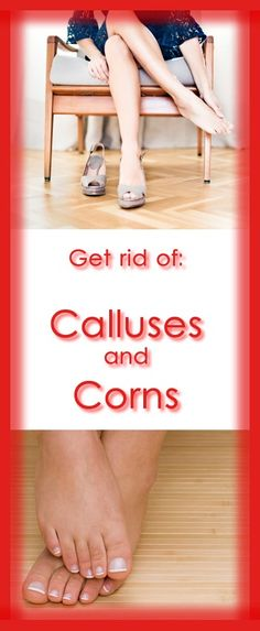 Most calluses are found on the ball of the foot, although they may form elsewhere including the heels. Its job is to act as defense mechanism, to, insulate and protect the balls of the feet and other areas on the feet against the abnormal bony pressure put upon it.