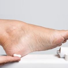 Home Remedies For Cracked Heels - How To Treat Cracked Heels At Home   MensCosmo.com