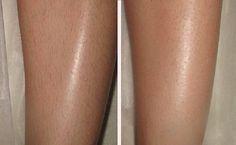 Как избавиться от волос на ногах ИНГРЕДИЕНТЫ 50 г воды 50 г жидкого мёда 200 г сахара
