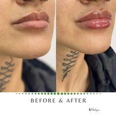 Dermal Fillers Lips, Lip Fillers, Lip Injections Juvederm, Asian Makeup Looks, Facial Aesthetics, Beauty Care Routine, Lip Augmentation, Lip Shapes, Beauty