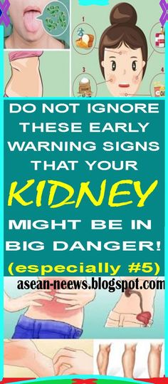 If Your Kidney Is in Danger, the Body Will Give You These 7 Signs!