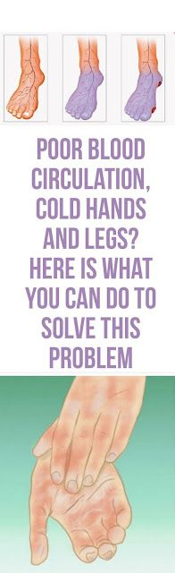Poor Blood Circulation, Cold Legs and Hands? Here is What You Can do to Solve This Problem!