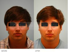 Male Rhinoplasty (Frontal) - This Gentleman Presented With Nasal Obstruction, A Crooked Nasal Bridge, An Underprojected Nasal Tip, And A Slight Dorsal Convexity Which He Did Not Like. As A Male, He Underwent A Very Conservative Hump Reduction Along With Refinement To His Nasal Tip And Straightening Of His Nasal Bridge. He Also Had A Septoplasty To Correct The Nasal Breathing Problem.  Primary Rhinoplasty Procedure By Dr Samuel Lam #Lamfacialplastics #Drsamlam #Plasticsurgery #Rhinoplasty