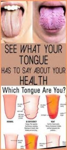 What Your Tongue is Trying to Tell You About Your Health Natural Medicine, Herbal Medicine, Homeopathic Medicine, Tongue Health, Healthy Tongue, Yoga Training, Medicine Book, Medicine Doctor, Chinese Medicine