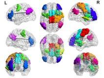 Los adictos a los videojuegos tienen un cerebro distinto. 05/01/16
