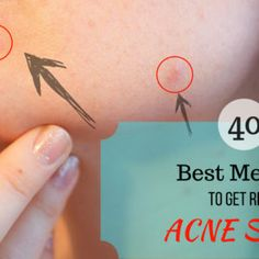 30 Natural Home Remedies to heal Acne Scars overnight - Acne Treatment Home Remedies For Acne, Acne Remedies, Breaking Out On Chin, Best Oil For Skin, Dark Elbows, Pimples On Chin, Acne Scar Removal