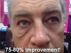 Right side eye treated with Instantly Ageless.  Wow!!   twominutetransformation.com Pictures Of People, Anti Aging, Side Eye, Independent Distributor, How To Apply, Eyes, Women, Coming Of Age, Signs