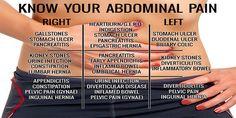 Abdominal Pain Chart