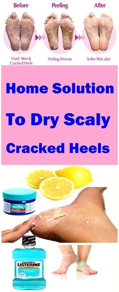 Home Solution To Dry Scaly Cracked Heels
