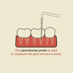 AT EVERY 6 MONTH CHECKUP, we use a periodontal probe to painlessly measure your gums and assess how often you should come in for cleanings!