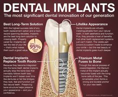 Dental implants are the most significant dental innovation of our generation. With a high success rate (over and a track record spanning decades, dental implants are now considered the best long-term solution for missing teeth. When properly cared for Dental Implant Surgery, Teeth Implants, Nose Surgery, Oral Surgery, Dental Health, Dental Care, Oral Health, Dental Bridge Cost, Dental Doctor
