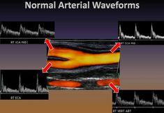 Vascular Ultrasound, Ultrasound Sonography, Radiology Imaging, Medical Imaging, Ultrasound School, Ultrasound Technician, Carotid Artery, Fundamentals Of Nursing, Passion