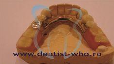 Proteza scheletata  http://www.dentist-who.ro