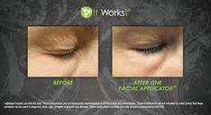 Help get rid of wrinkles Fastand Healthy