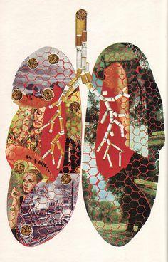 03 Poumons et tabac, illus. P. Pottier (Le Livre de Sante, v.5, 1967)