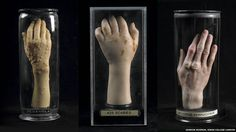Wax hands by Joseph Towne were anatomical models made from 1825 to teach contagious disease at Guy's Hospital, London. Some are currently on display at the Museum of London.
