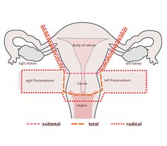 About Hysterectomy - Cost, Procedure, Doctors